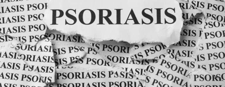 Le psoriasis, l'étrange rébellion épidermique !