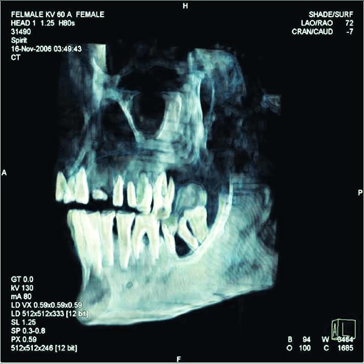 3500 ans et presque toutes ses dents !